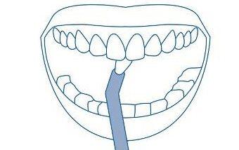 Egy csomós fogkefe használata